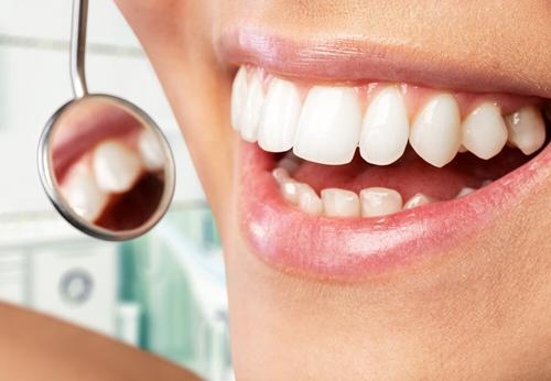 Professionelle Zahnreinigung - Zahnarztpraxis Zahnglück Springe